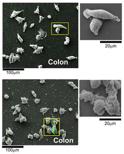 Two pictures showing the difference of non-treated cancer cells and ones that are treated with nanoparticles