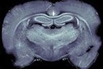 New X-ray method for understanding brain disorders better